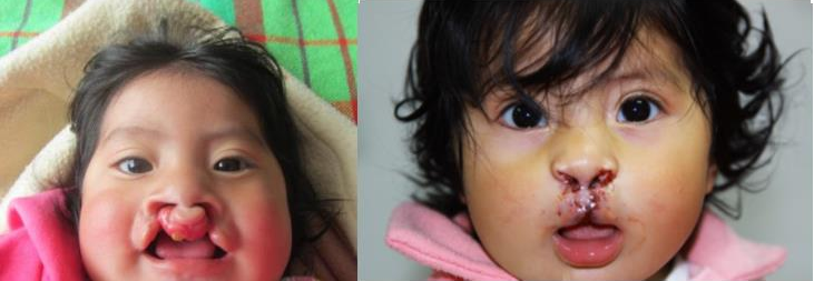Yoritza before and after reconstructive surgery. Photo courtesy of Medical for Children.